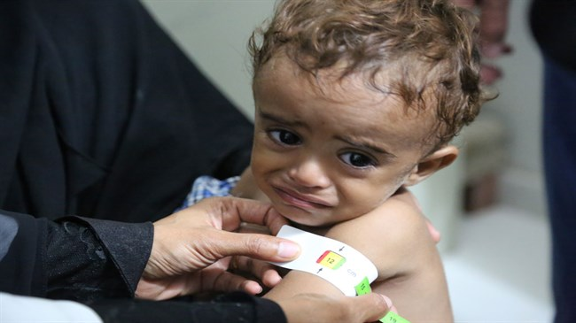 No famine declared in Yemen, but 60 percent on the brink