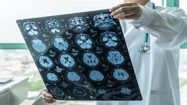 Sustained high blood pressure may damage brain vessels