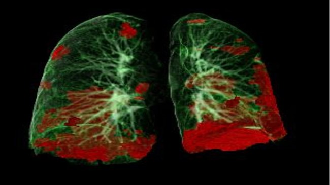 COVID-19 patients suffer long-term lung and heart damage but it can improve with time
